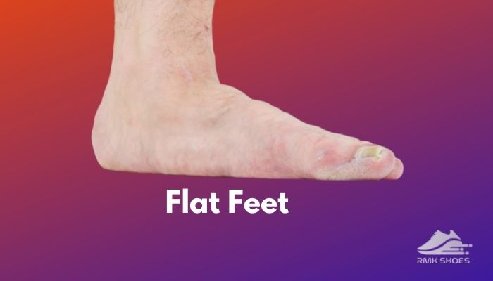 what-causes-flat-feet-and-its-cure